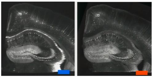 小鼠海马结构图